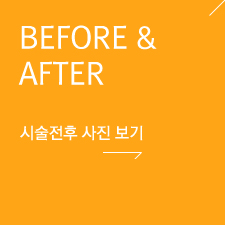 BEFORE & AFTER 시술전후 사진 보기